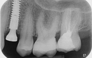 Лечение зубов в Германии с КлиникаАТ