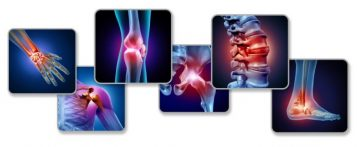 Диагностика и операция артроза в Германии